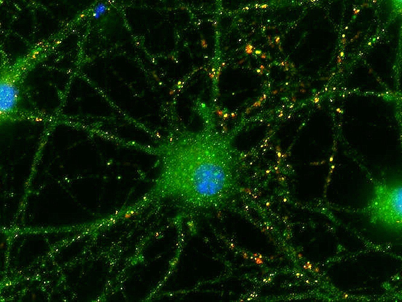 La neuritas tratadas presentan más puntos amarillos (conexiones) en esta foto facilitada por la Universidad de Duke.