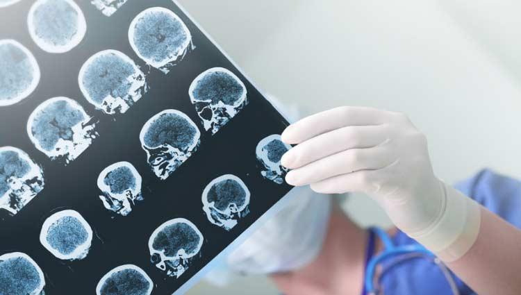 Examen por secuelas de ictus cerebral. En España se producen 125.000 nuevos casos al año.