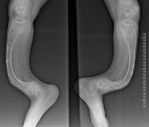 """Radiografía de un paciente de osteogénesis imperfecta o síndrome de los """"huesos de cristal""""."""