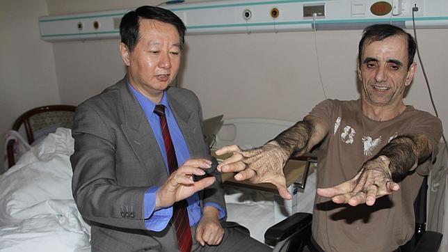 El doctor Huang Hongyun atiende a Camel Attig, un paciente francés afectado por una enfermedad degenerativa. Foto ABC.