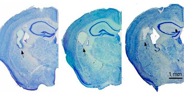 Hemisecciones cerebrales de animales trasplantados con hidrogel de fibroína de seda.